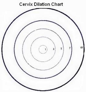 dilationchart1